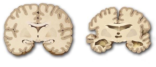 Dấu hiệu nhận biết sớm bệnh teo não 1